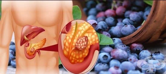 Хроничен панкреатит
